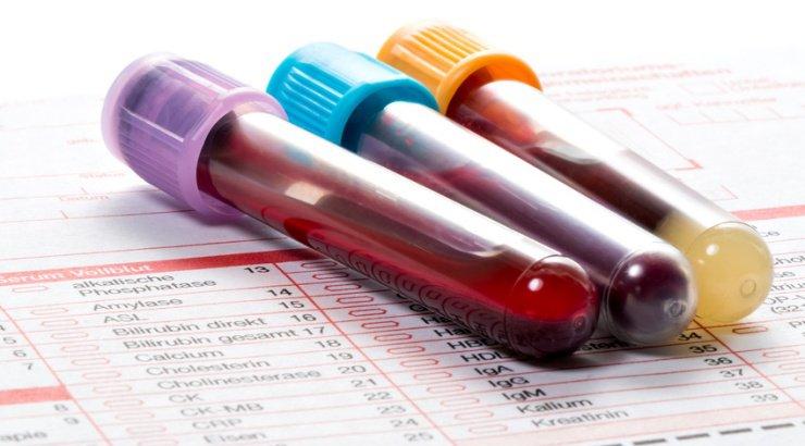 Nhóm máu O Rh- nhóm máu chuyên cho (Ảnh sưu tầm)